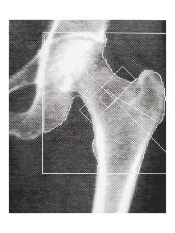 Bone density medical scan - hip. Osteoporosis diagnosis. Osteopenia present. Modern medical technology stock images