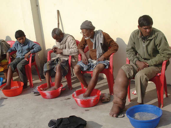 Elephantiasis patients
