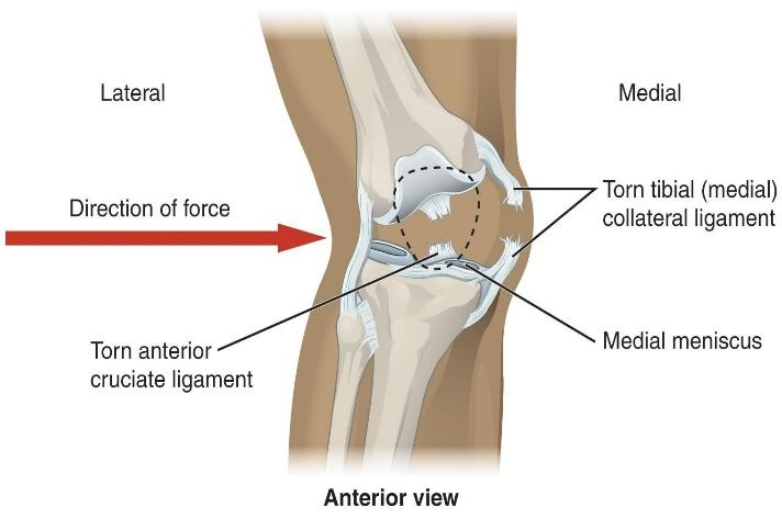 MCL Sprains Part 1 - Anatomy, Function, Mechanism of Injury & Diagnosis |  POGO Physio Gold Coast