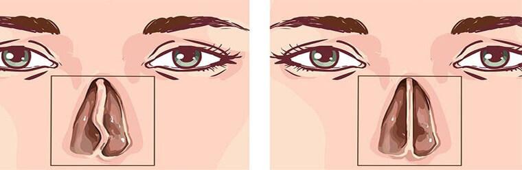 عمل بینی ترمیمی