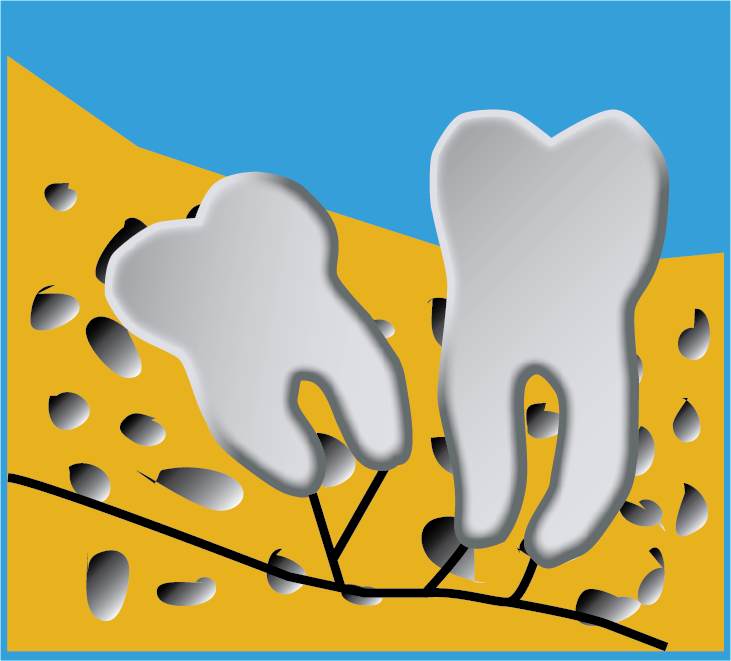 Image of Wisdom Tooth Tilted Backward In Jawbone