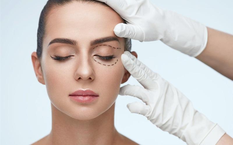 Các vấn đề thường gặp sau cắt mí mắt – Bệnh viện thẩm mỹ Sao Hàn
