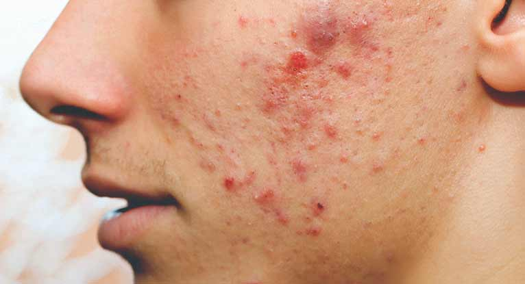 Pimples Naturally, Pimples