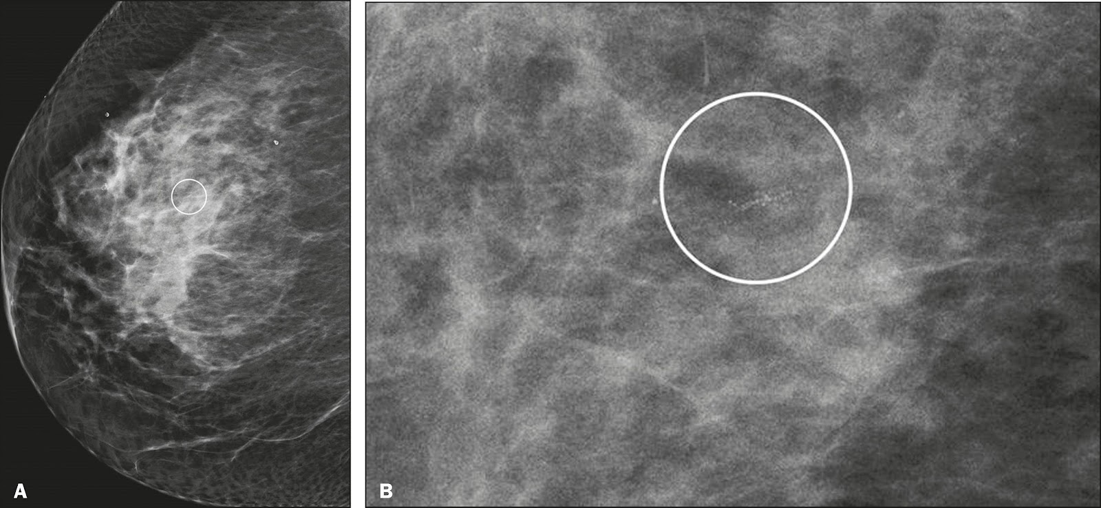 Image result for amorphous calcifications on mammogram