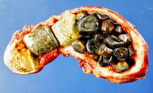 Gall Bladders opened showing Gall Stones, credit wikipedia