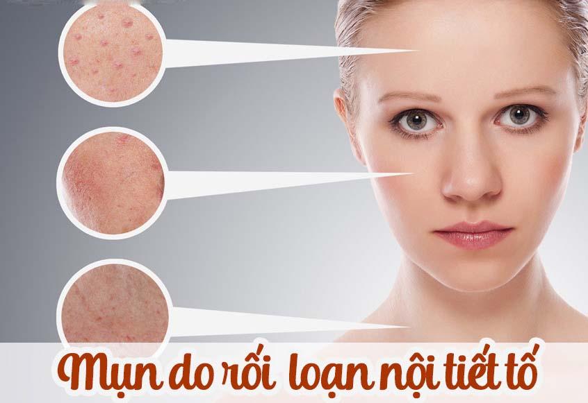 Collagen - trợ thủ chăm sóc da sau mụn tuổi trưởng thành
