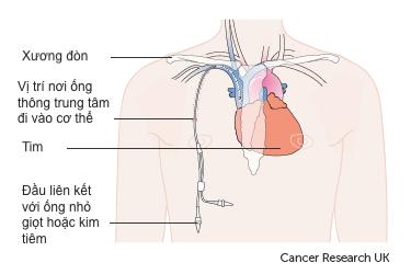 Sơ đồ của ống thông trung tâm trong cơ thể ( Ảnh: Cancer Research UK)