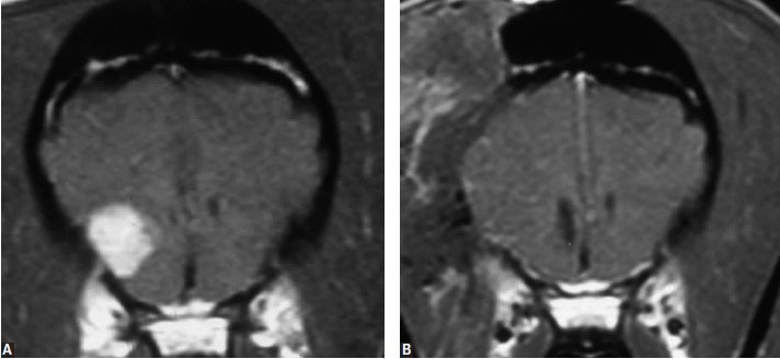 (A, B) Transverse, T1-weighted MR images following intravenous contrast administration of dogs with meningioma (left) before and (right) after surgical removal