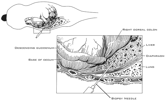 The biopsy needle is inserted and directed at a slightly oblique angle (30°)