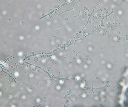 Pseudo-hifas de Candida albicans  na preparação de hidróxido de potássio (KOH) em microscopia de luz.