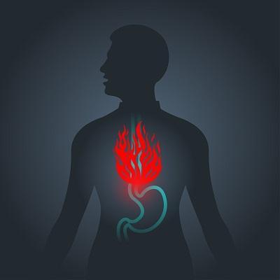 What is Gastroesophageal Reflux Disease? - Gastroenterologist in Anchorage,  AK