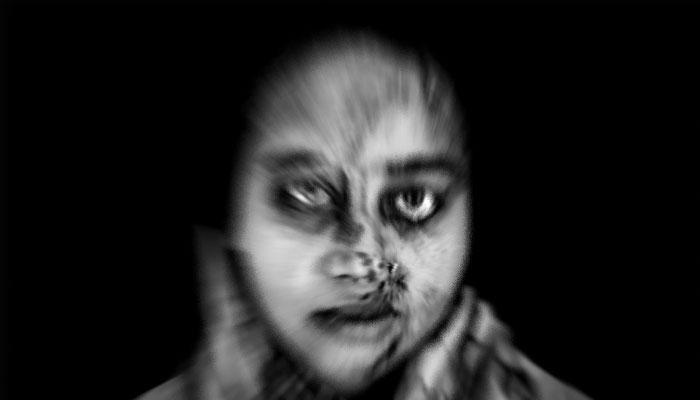 দুষ্কৃতীদের অতর্কিত অ্যাসিড হানায় নষ্ট হয়েছে চোখ, তবুও স্বপ্ন দেখেন শোভনা