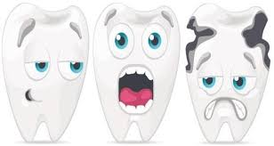 Image result for decayed teeth clip art
