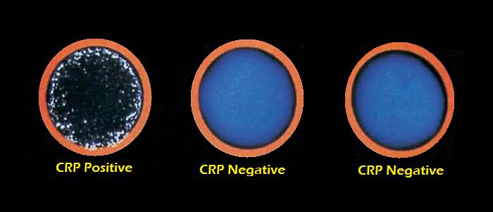 CRP Result