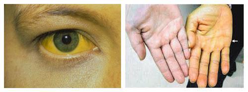 Bahaya Jarum Suntik Tidak Steril