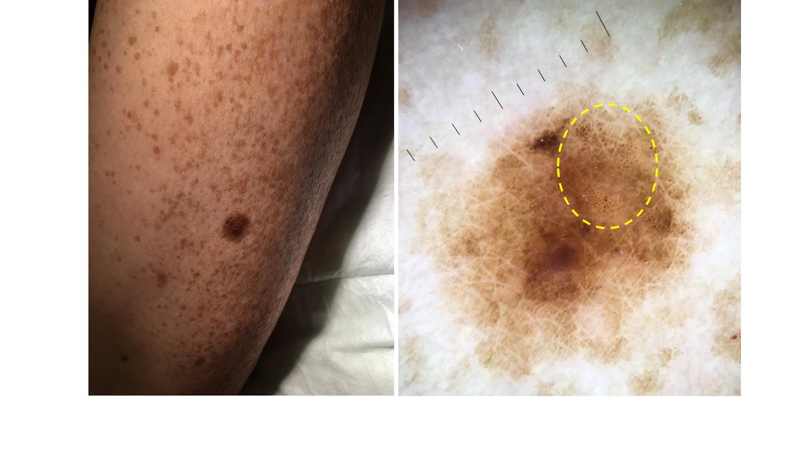 lesión melanocítica con zona globular