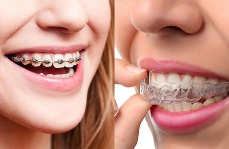 Traditional metal braces and Invisalign clear aligners