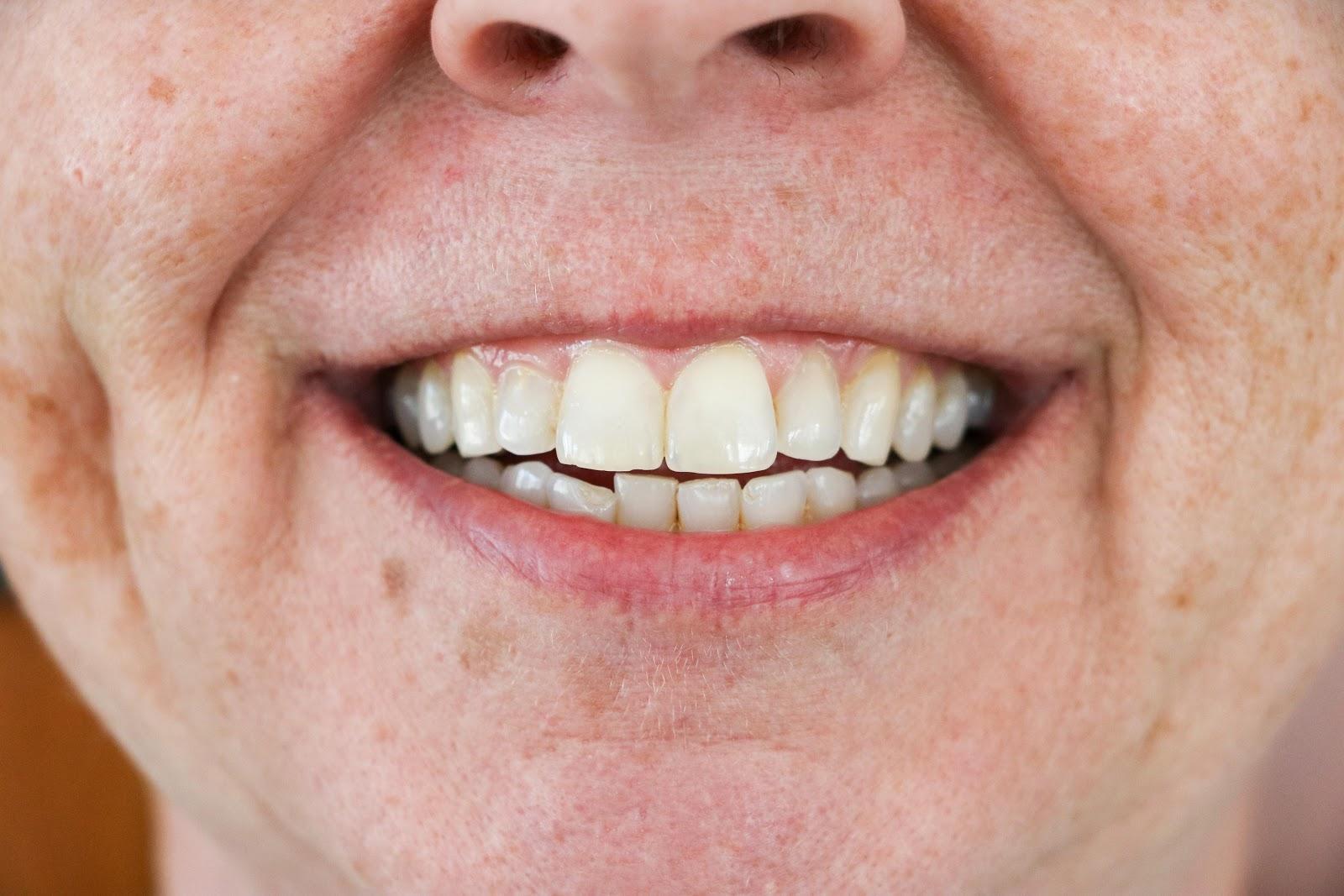 Stephanie's teeth before with teeth stains