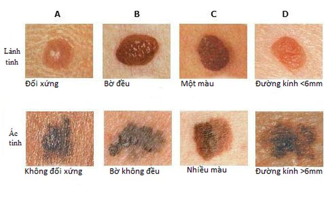 Nốt ruồi và dấu hiệu nhận biết bệnh