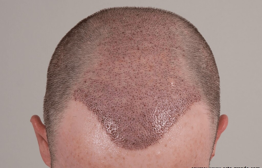 How to Remove Scabs after a Hair Transplant?