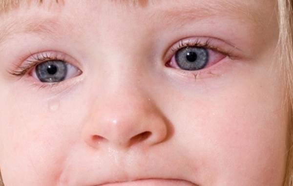 Điều trị viêm màng bồ đào trẻ em