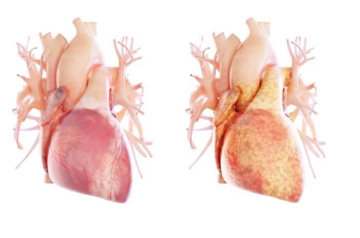 8 Pola Makan untuk Pengidap Penyakit Jantung Koroner