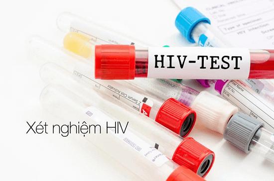 Xét nghiệm HIV sau 2 tháng có chính xác không? - Ảnh 2
