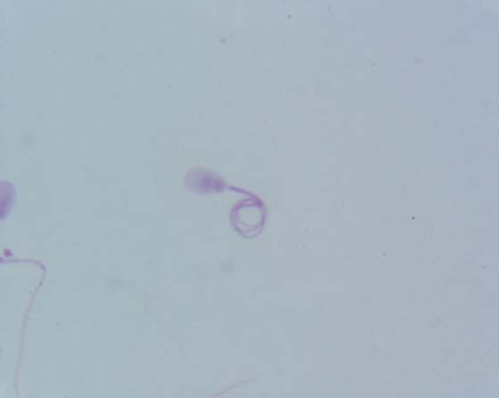 Terminal coiled sperm tail. Smear of a sperm rich fraction, air dried and stained with Diff-Quick..