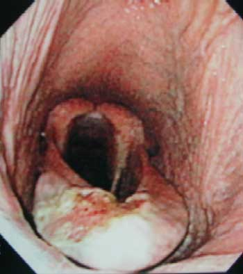 Ulcerated epiglottic entrapment.