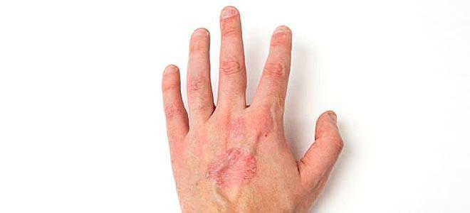 Ψωριασική Αρθρίτιδα: Mία νόσος με πολλά πρόσωπα - Δερματολογία - Υγεία
