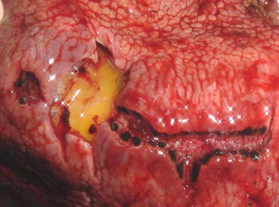 Ulcers in the gastric mucosa