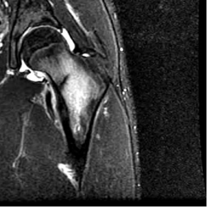 Bone Stress Injuries: picture of a Magnetic Resonance Imaging Study of a femur (thigh bone) with a stress fracture