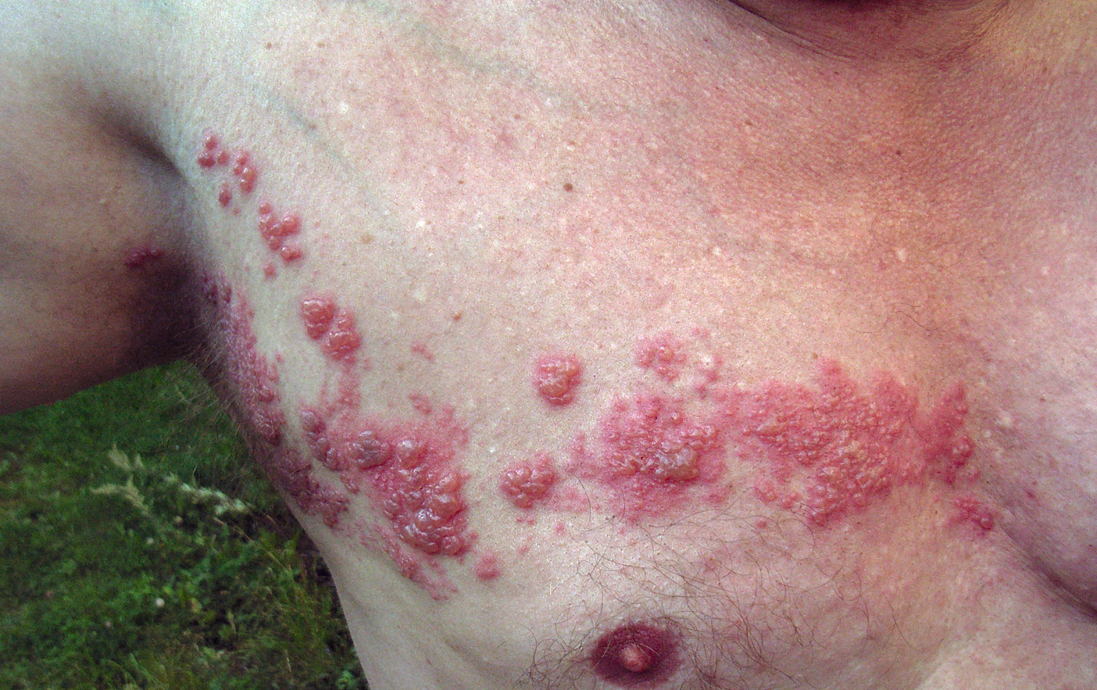 https://upload.wikimedia.org/wikipedia/commons/1/19/Herpes_zoster_chest.png