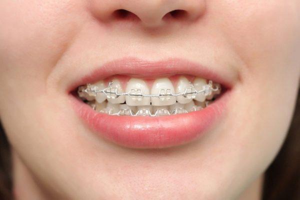 Niềng răng hàm trên bao nhiêu tiềnphụ thuộc vào yếu tố nào?