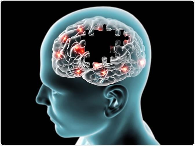 Alzheimer's Disease   Definition, Causes, Diagnosis & Treatment