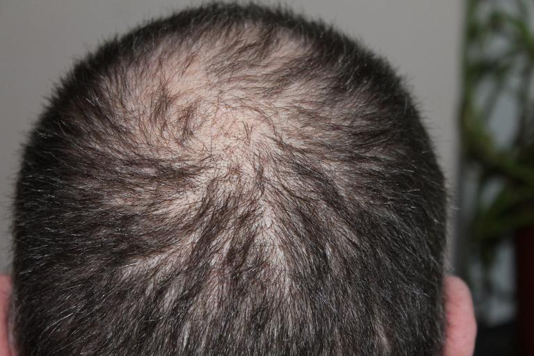 Do Copper Peptide Serums Prevent Hair Loss and Promote Growth 3