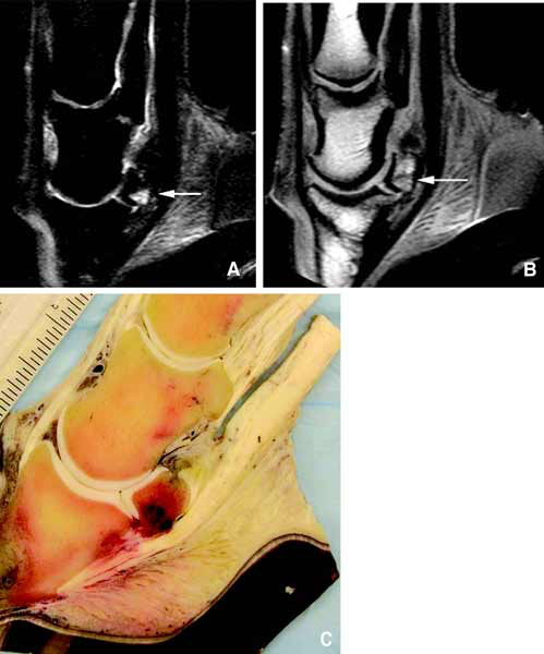 (A) STIR and (B) T1-weighted sagittal images of a foot with multiple lesions acquired with an ONI OrthOne (1.0 T). The image in figure 4C is the corresponding gross image showing hemorrhage in the navicular bone.
