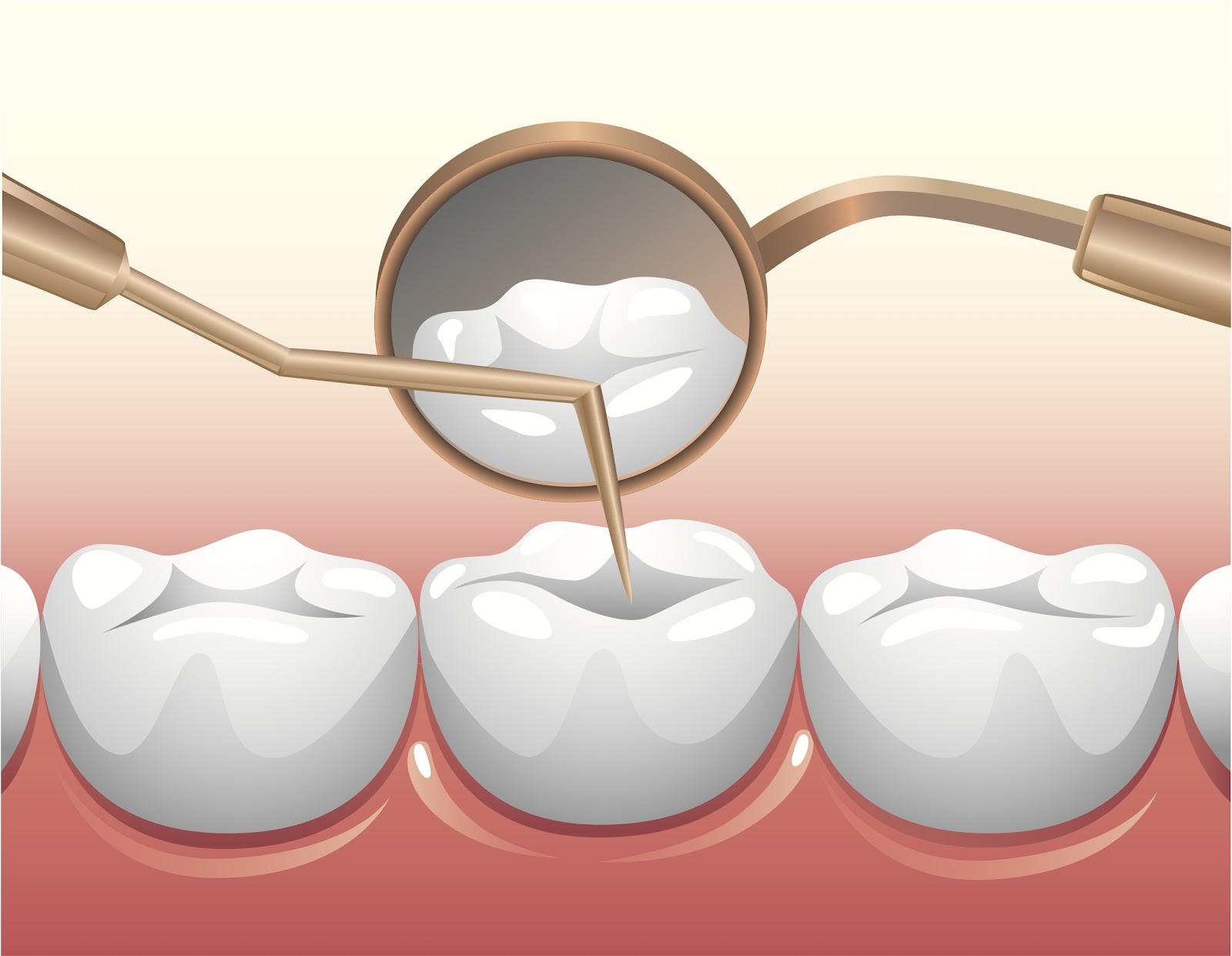 Các bước trong quy trình điều trị tủy răng diễn ra thế nào? 1