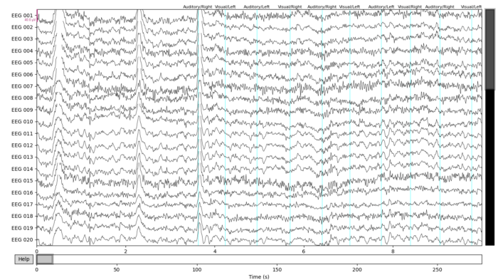 Picture of filtered EEG data with labeled stimuli MNE