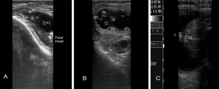 Figura 26A. Ecografía reproductiva de un feto bubalino para determinación de sexo en el Día 60 de gestación. 26B y 26C. Feto hembra en el Día 60 y 90 de gestación. Miembro posterior (RL), miembro anterior (FL), Tubérculo genital (GT), Ombligo (U),  Cola (T).