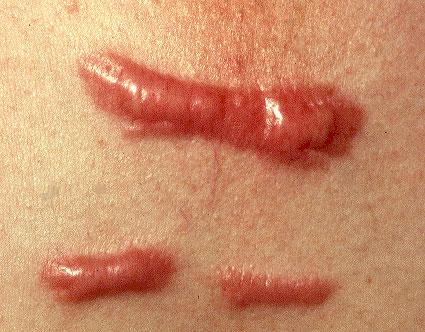 keloids_hypertrophic_scars.jpg