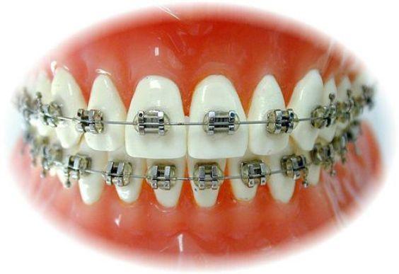 Các loại mắc cài niềng răng được ưa chuộng nhất hiện nay