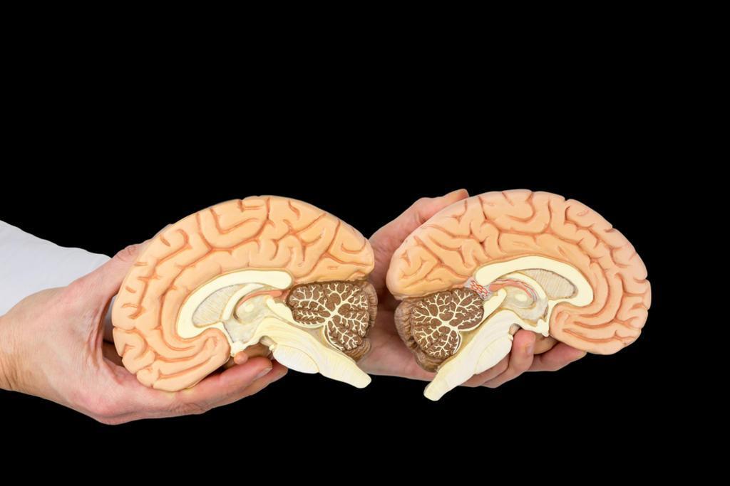 Cuando falta un hemisferio del cerebro la otra mitad compensa las  conexiones, El Siglo de Torreón