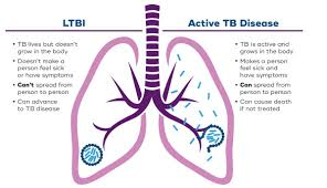 Tuberculosis (TB) Can Be Deadly If  You Don't  See Doctor On Time: 2 - Daily Medicos