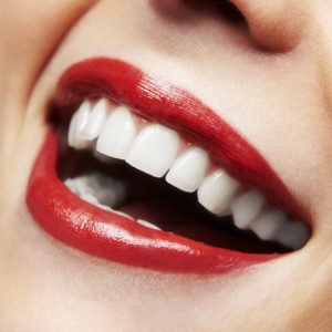 What are veneers and why do i need them what are veneers solutioingenieria Image collections