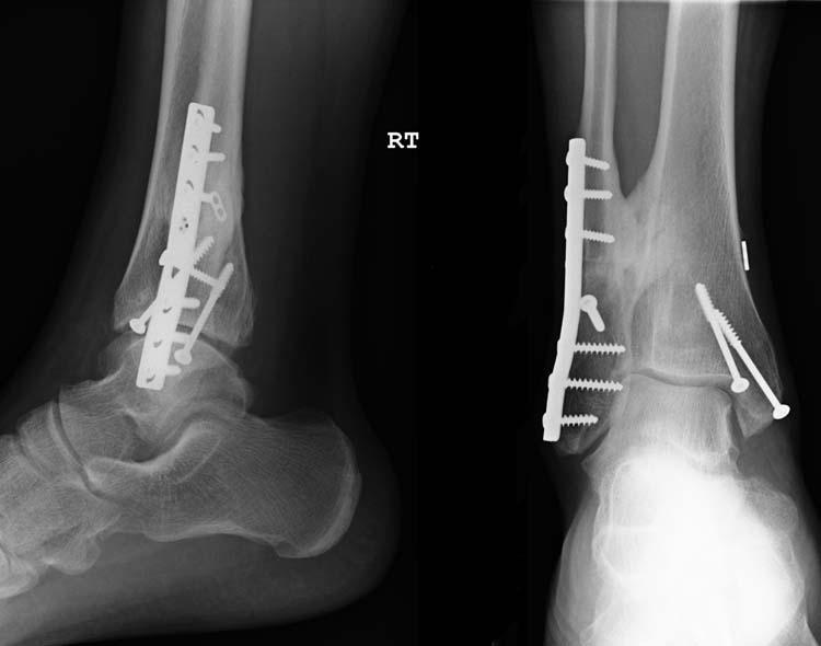 Image result for tibia or fibula fracture