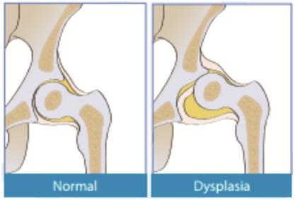tratament de instabilitate a articulației șoldului