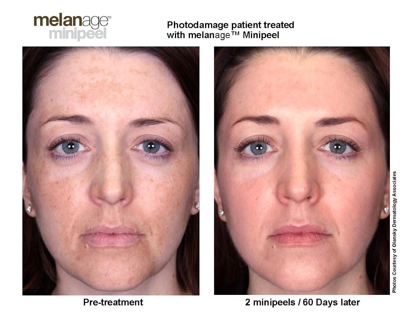 Trước và sau khi điều trị nám bằng phương pháp Peel da hóa học