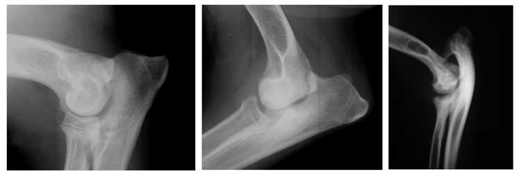 A distal humero-ulnar subluxation is present in the dog on the left with a premature closure of the distal ulnar physis