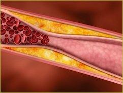 Artheriosclerosis
